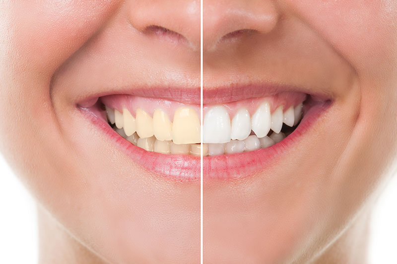 Teeth Whitening in Las Vegas